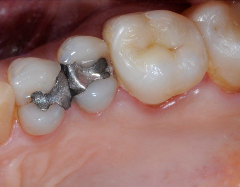Amalgama e otturazioni - Dentista