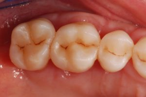 composito in odontoiatria